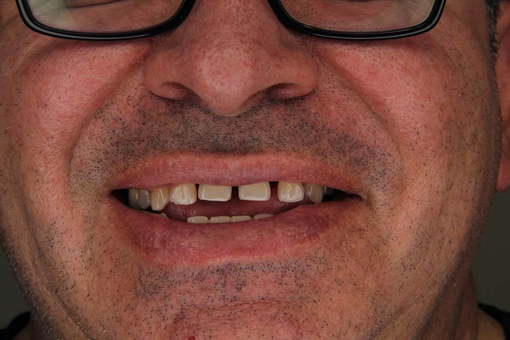 Dental Crowns in Mexico
