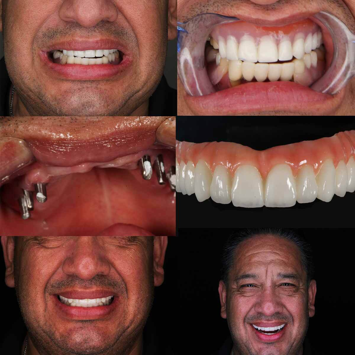 Jose - CA, Mexico Dental Implants