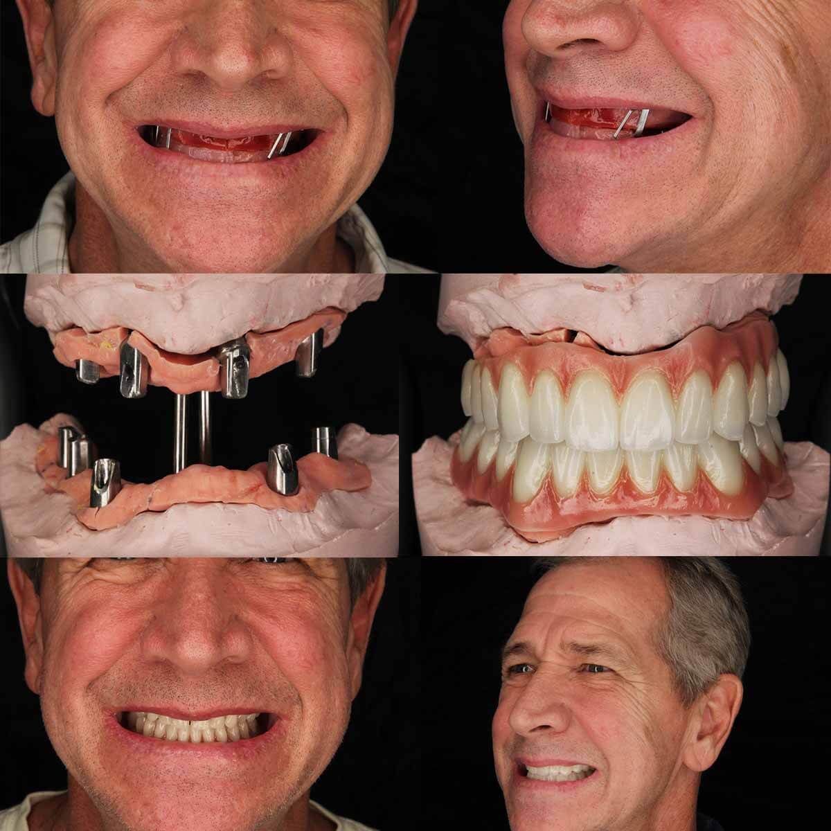Mexico Dental Implants Cost