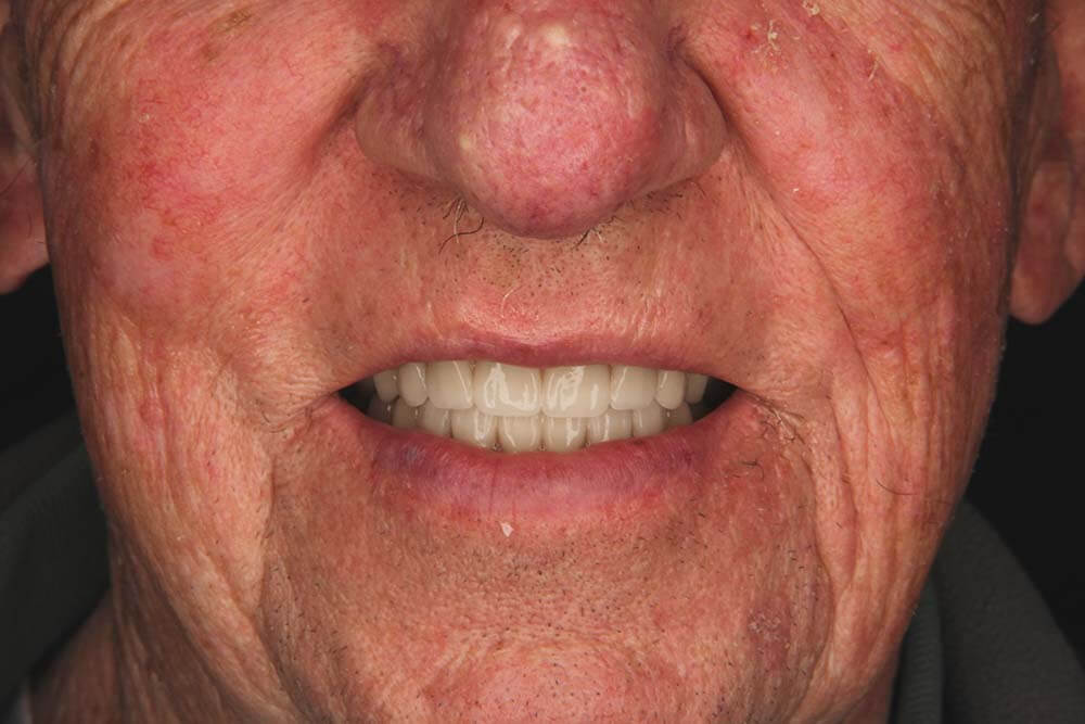 Snap on Dentures Mexico After