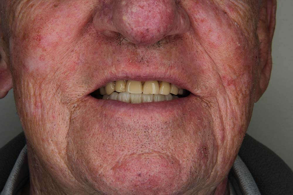 Snap on Dentures Mexico Before
