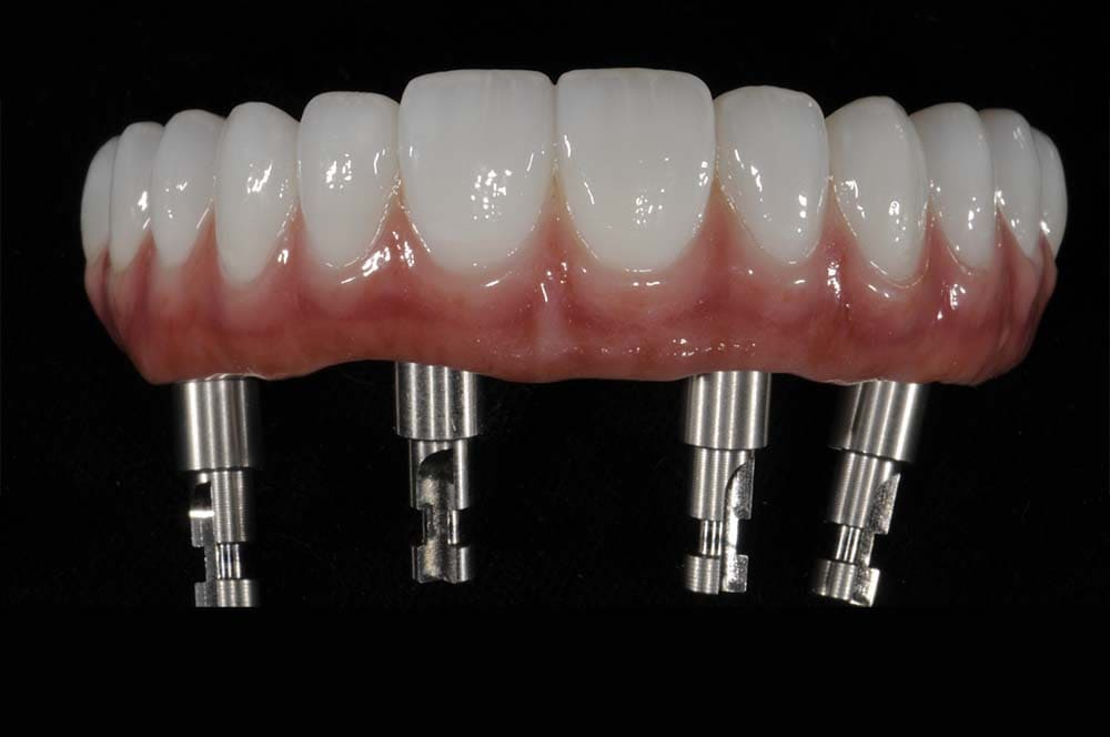 All on 4 Dental Implants Meixco Acrylic Resin