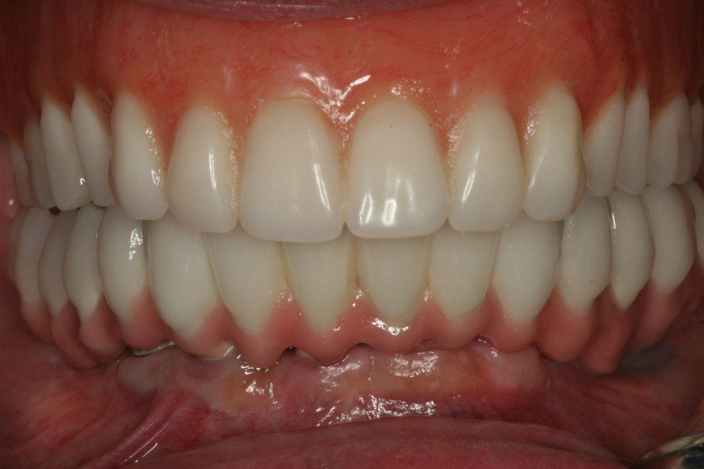 All on 4 Dental Implants Mexico
