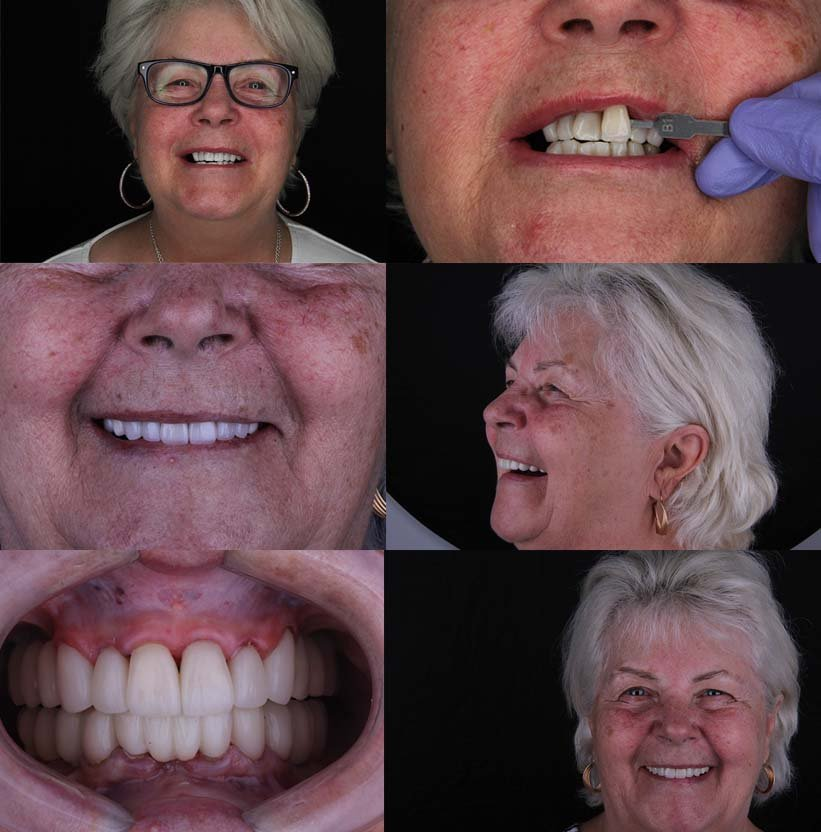 Full Mouth Restoration in Mexico